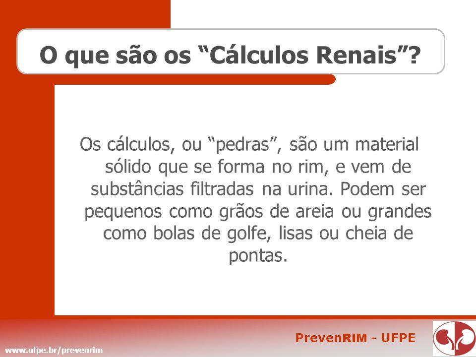 www.ufpe.br/prevenrim Preven RIM - UFPE O que são os Cálculos Renais? Os cálculos, ou pedras, são um material sólido que se forma no rim, e vem de sub