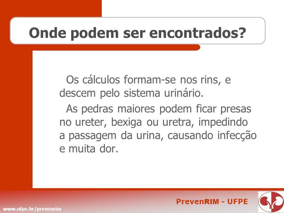 www.ufpe.br/prevenrim Preven RIM - UFPE Onde podem ser encontrados? Os cálculos formam-se nos rins, e descem pelo sistema urinário. As pedras maiores