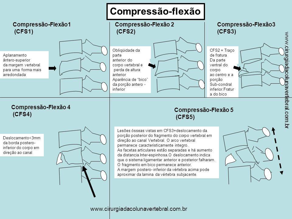 www.cirurgiadacolunavertebral.com.br Compressão vertical O centro é fragmentado.