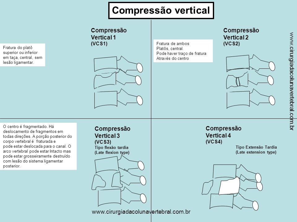 www.cirurgiadacolunavertebral.com.br Deslocamento completo do corpo vertebral ou Vértebra flutuante.