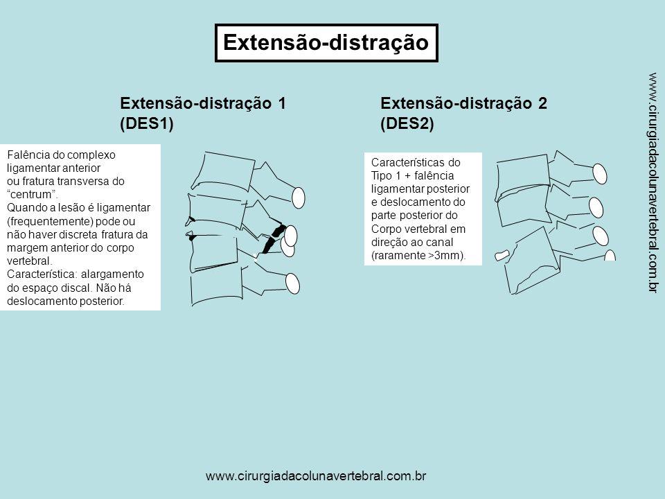 www.cirurgiadacolunavertebral.com.br Flexão Lateral Flexão Lateral 1 (LFS1) AP Flexão Lateral 1-Perfil (LFS1) Flexão Lateral 2 (LFS2) Falência Em tensão Compressão assimétrica do centrum + fratura do arco vertebral no lado ipsilateral.