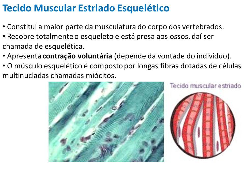 Tecido Muscular Estriado Esquelético Constitui a maior parte da musculatura do corpo dos vertebrados. Recobre totalmente o esqueleto e está presa aos