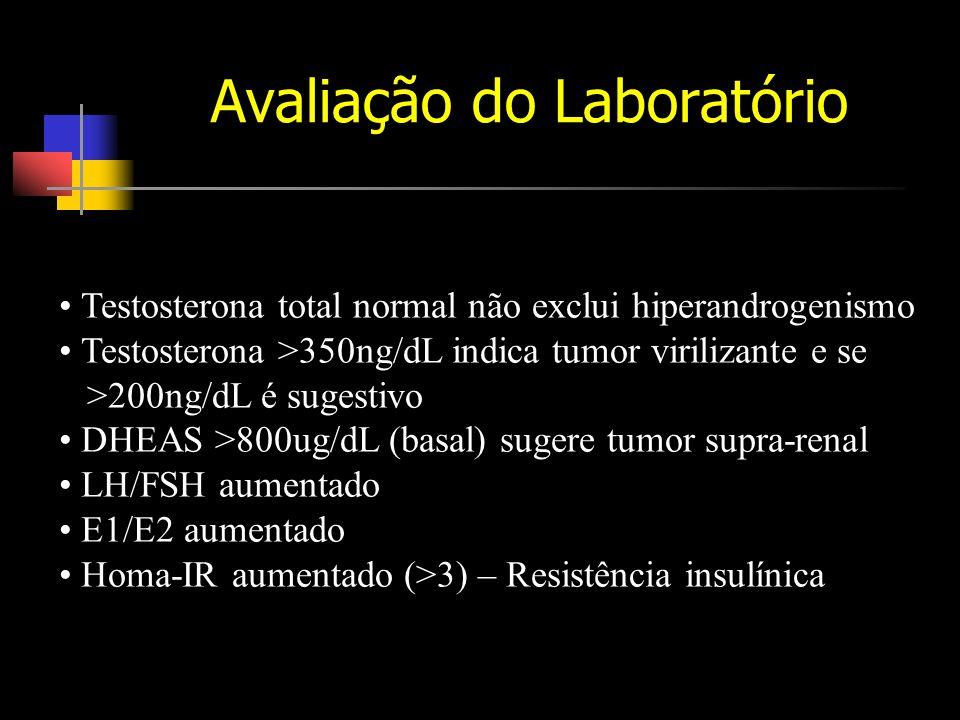 Avaliação do Laboratório Testosterona total normal não exclui hiperandrogenismo Testosterona >350ng/dL indica tumor virilizante e se >200ng/dL é sugestivo DHEAS >800ug/dL (basal) sugere tumor supra-renal LH/FSH aumentado E1/E2 aumentado Homa-IR aumentado (>3) – Resistência insulínica