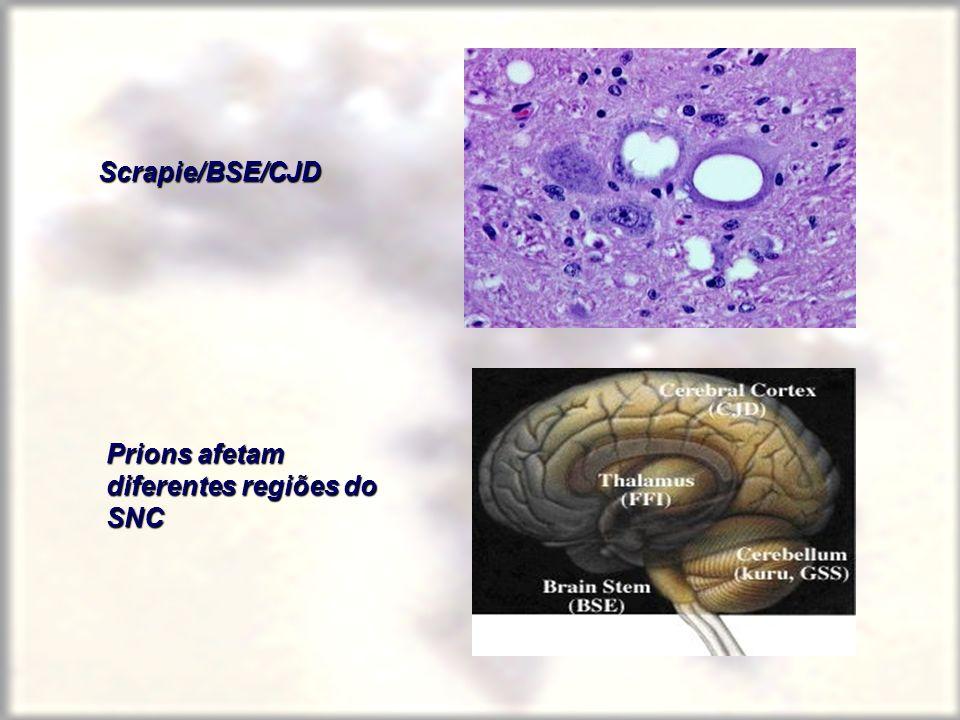 Scrapie/BSE/CJD Prions afetam diferentes regiões do SNC