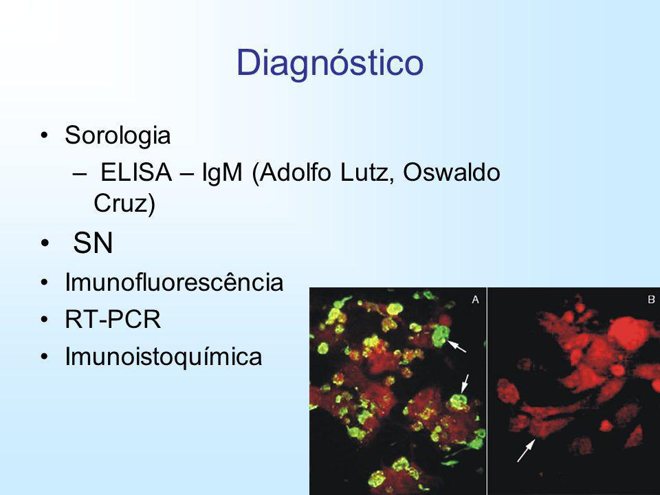 Diagnóstico Sorologia – ELISA – IgM (Adolfo Lutz, Oswaldo Cruz) SN Imunofluorescência RT-PCR Imunoistoquímica