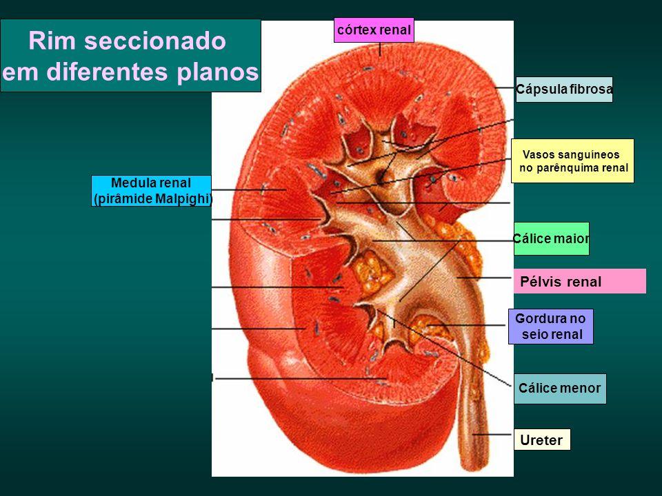 Cápsula fibrosa Vasos sanguíneos no parênquima renal Cálice maior Gordura no seio renal Cálice menor Ureter Medula renal (pirâmide Malpighi) córtex re