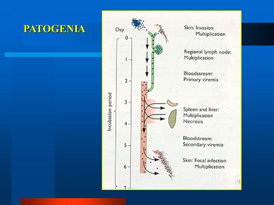 CTL Célula infectada