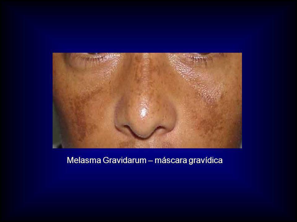 Melasma Gravidarum – máscara gravídica
