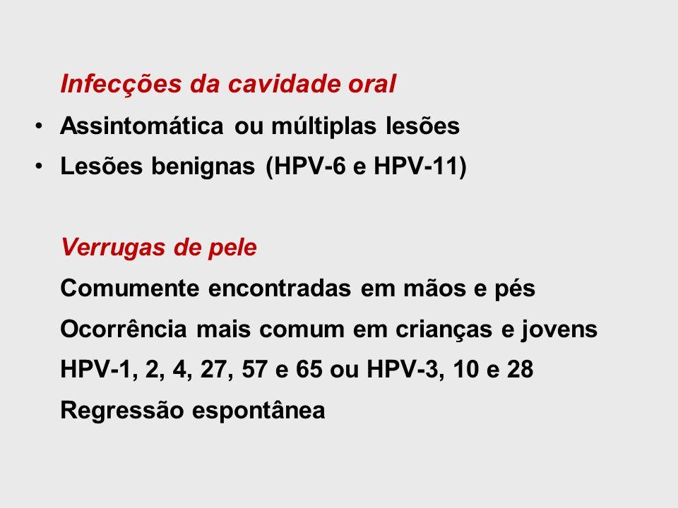Infecções da cavidade oral Assintomática ou múltiplas lesões Lesões benignas (HPV-6 e HPV-11) Verrugas de pele Comumente encontradas em mãos e pés Oco