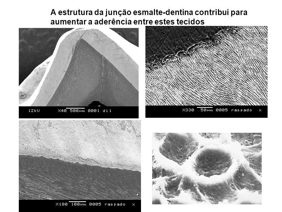 A estrutura da junção esmalte-dentina contribui para aumentar a aderência entre estes tecidos