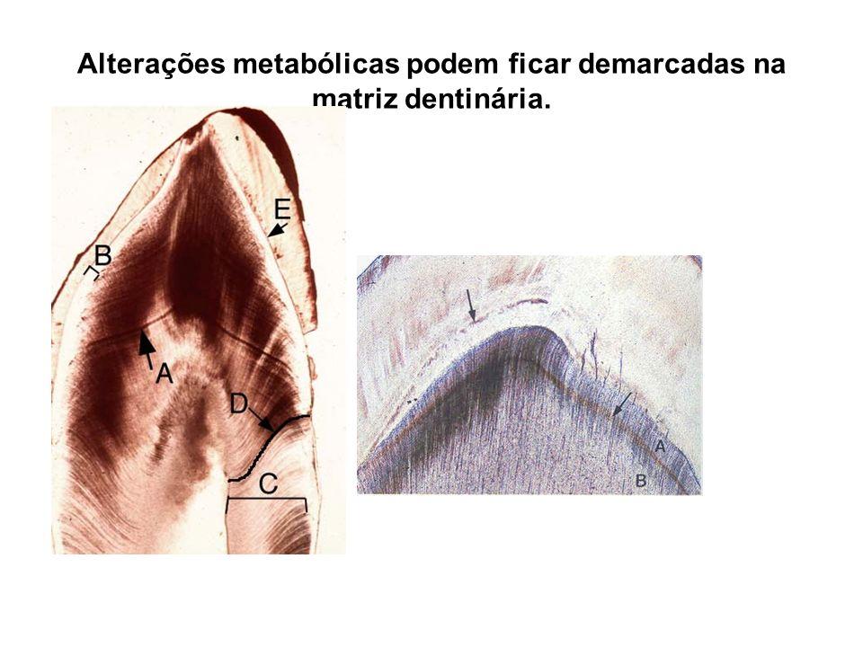 Alterações metabólicas podem ficar demarcadas na matriz dentinária.