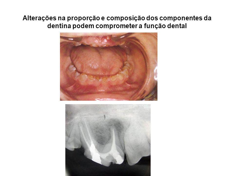 Alterações na proporção e composição dos componentes da dentina podem comprometer a função dental