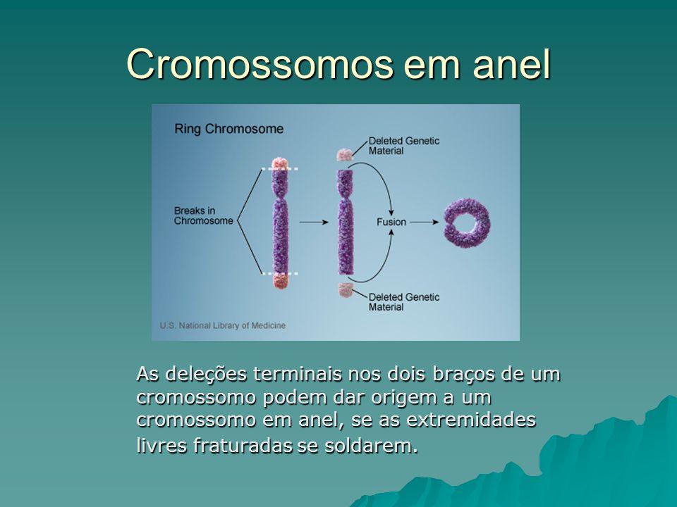 Cromossomos em anel As deleções terminais nos dois braços de um cromossomo podem dar origem a um cromossomo em anel, se as extremidades livres fratura