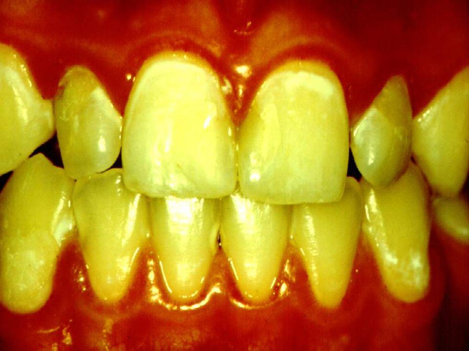 Composição Química dos Dentes H 2 O Água de Hidratação-Água frouxamente ligada Ligada à matéria orgânica Perda com aquecimento a 100º C Corresponde a 0,8% da água do esmalte Água Semi-cristalina- Água fortemente ligada Camada de hidratação ao redor dos cristais Perda com aquecimento a 350º C Corresponde a 3,3% da água do esmalte