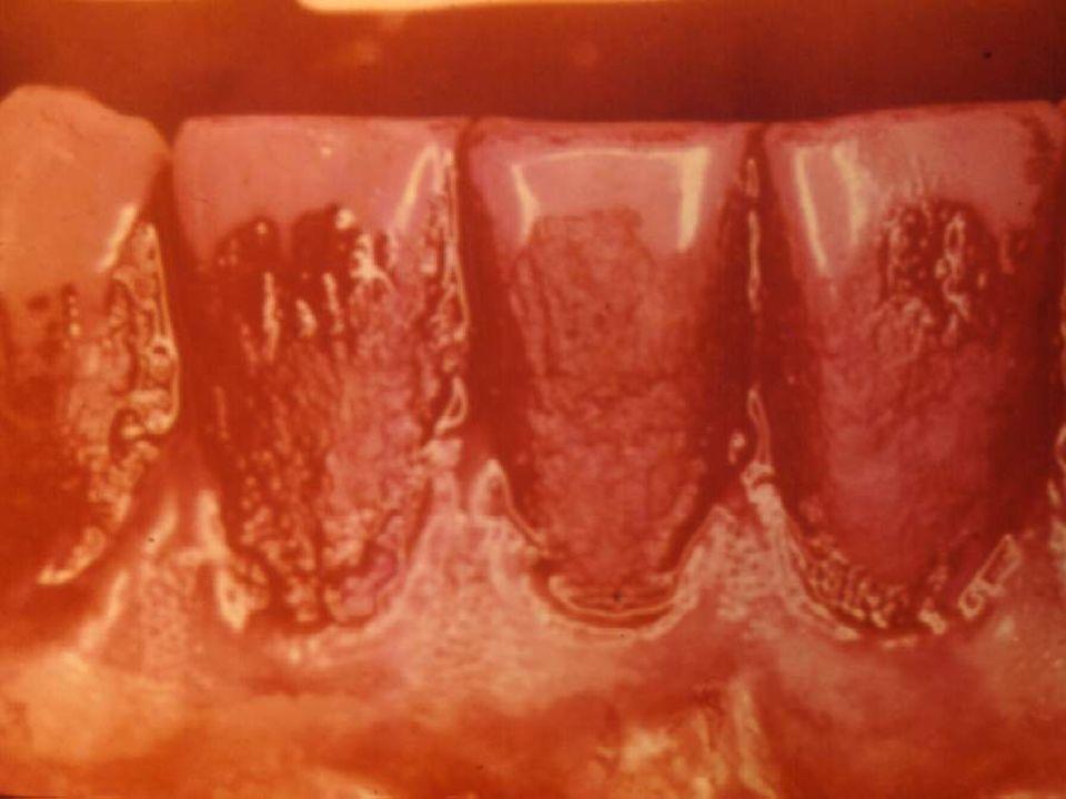 Composição Química dos Dentes Elementos Secundários Alta concentração na superfície do esmalte F, Pb, Zn, Fe e Sb Baixa concentração sobre a superfície Na, Mg e CO 3 Distribuição uniforme Sr, Cu, Al e K