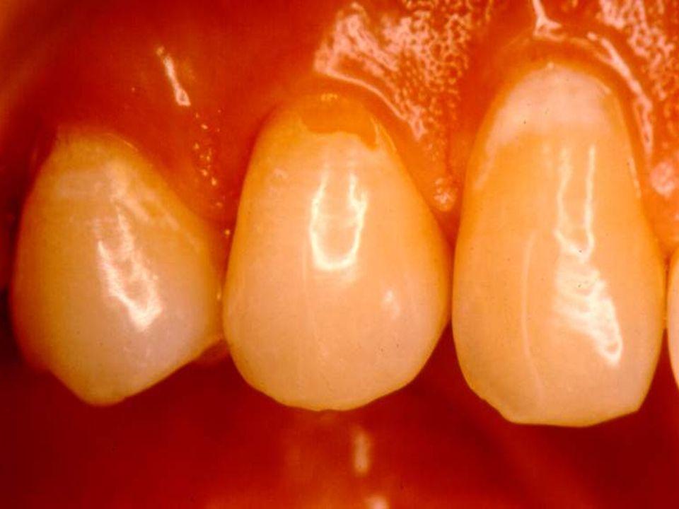Composição Química dos Dentes Gráfico da concentração de flúor no esmalte dental SUPERFÍCIE