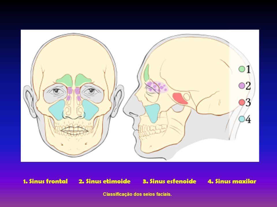1. Sinus frontal2. Sinus etimoide 3. Sinus esfenoide 4. Sinus maxilar Classificação dos seios faciais.