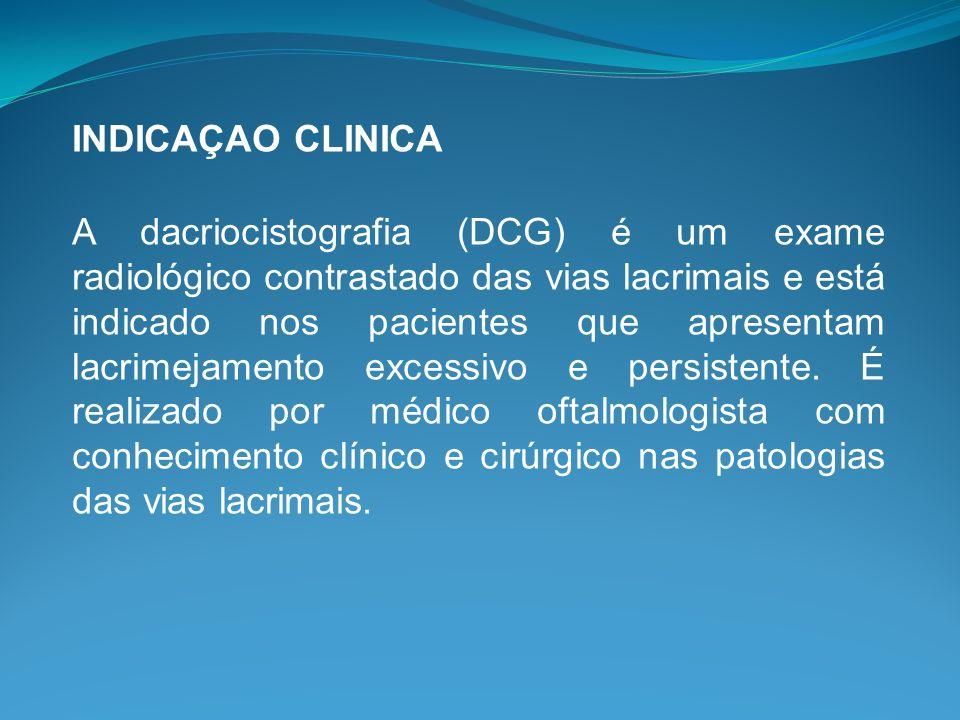INDICAÇAO CLINICA A dacriocistografia (DCG) é um exame radiológico contrastado das vias lacrimais e está indicado nos pacientes que apresentam lacrime