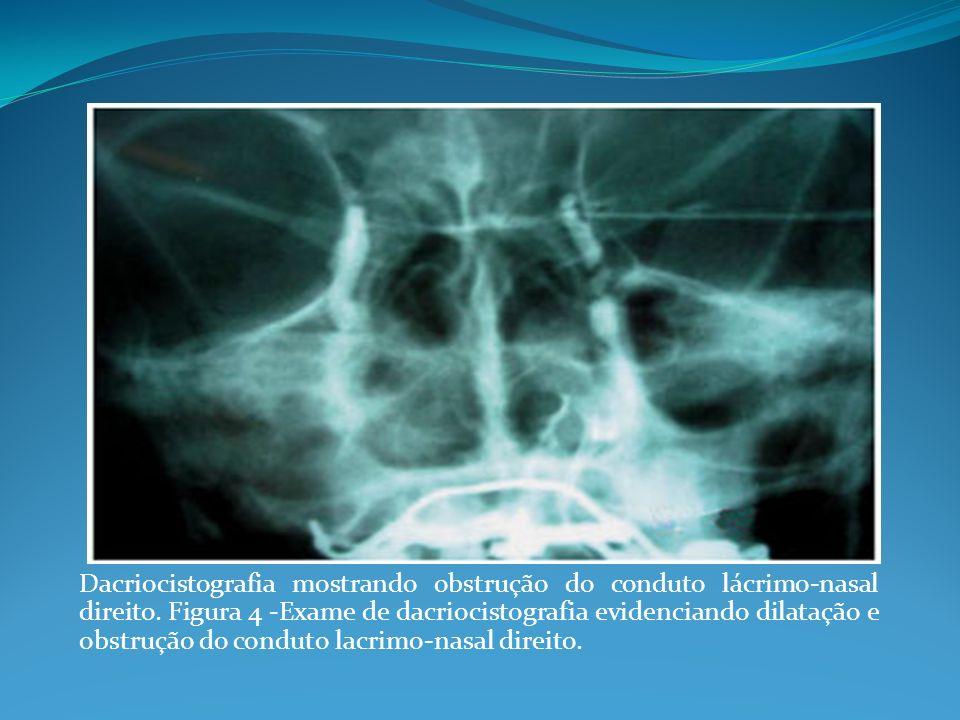Dacriocistografia mostrando obstrução do conduto lácrimo-nasal direito. Figura 4 -Exame de dacriocistografia evidenciando dilatação e obstrução do con