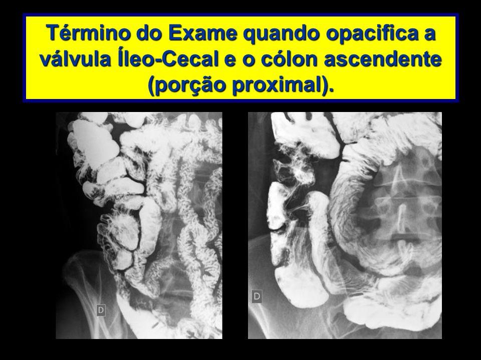 Término do Exame quando opacifica a válvula Íleo-Cecal e o cólon ascendente (porção proximal).