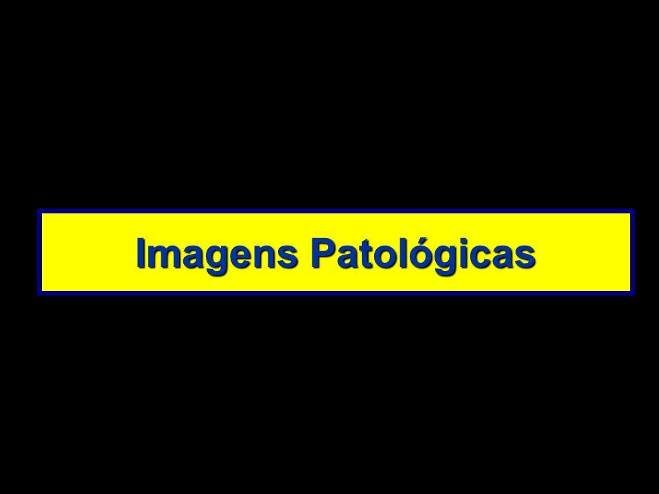 Imagens Patológicas