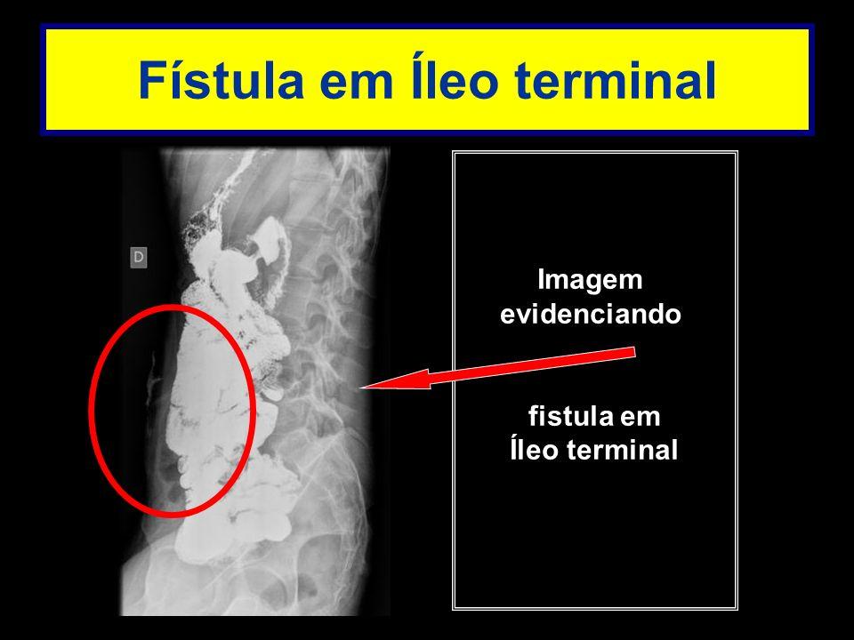 Imagem evidenciando fistula em Íleo terminal Fístula em Íleo terminal