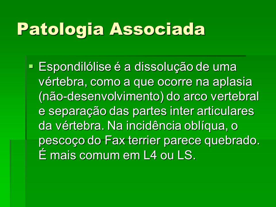 Patologia Associada Espondilólise é a dissolução de uma vértebra, como a que ocorre na aplasia (não-desenvolvimento) do arco vertebral e separação das