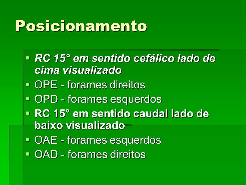 Posicionamento RC 15° em sentido cefálico lado de cima visualizado RC 15° em sentido cefálico lado de cima visualizado OPE - forames direitos OPE -