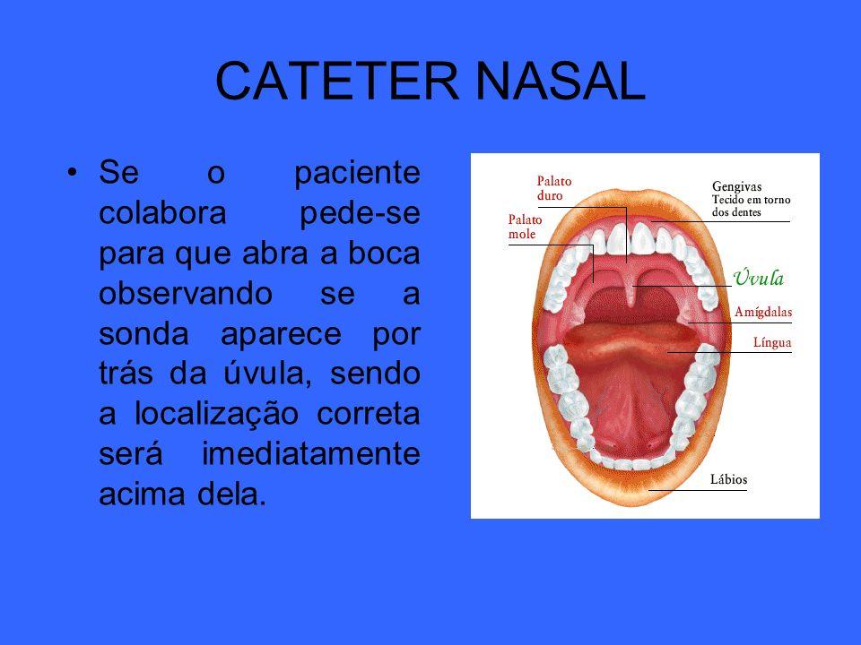 CATETER NASAL Se o paciente colabora pede-se para que abra a boca observando se a sonda aparece por trás da úvula, sendo a localização correta será im
