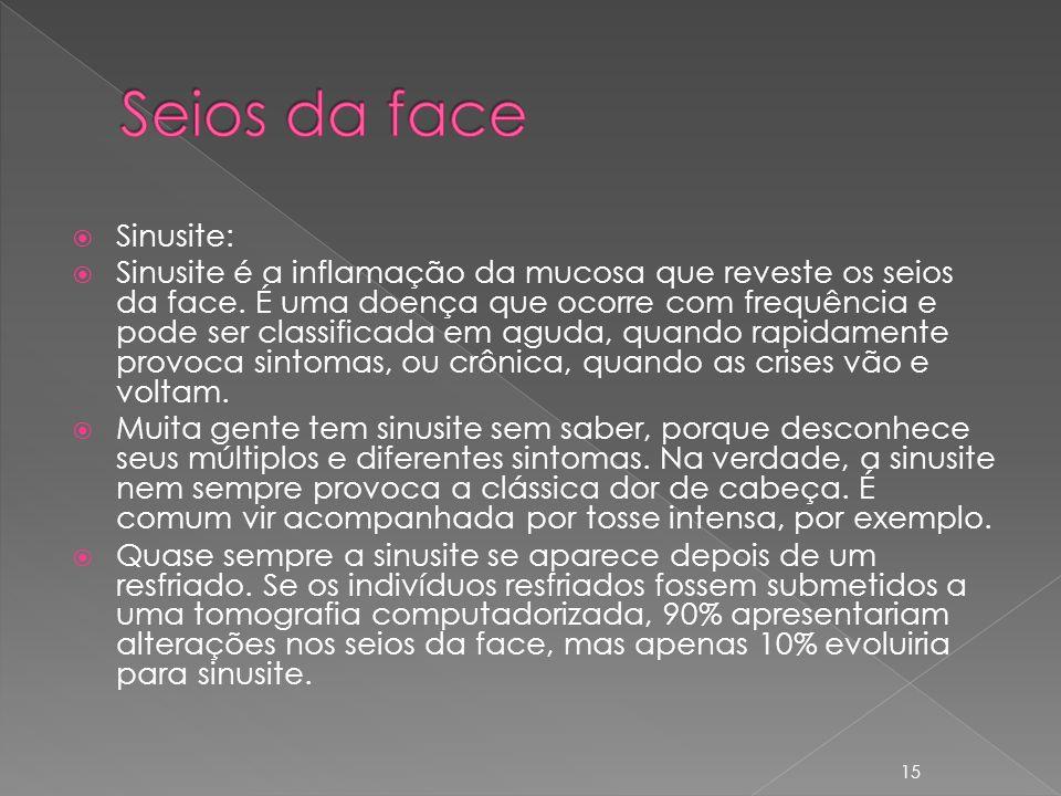 Sinusite: Sinusite é a inflamação da mucosa que reveste os seios da face.