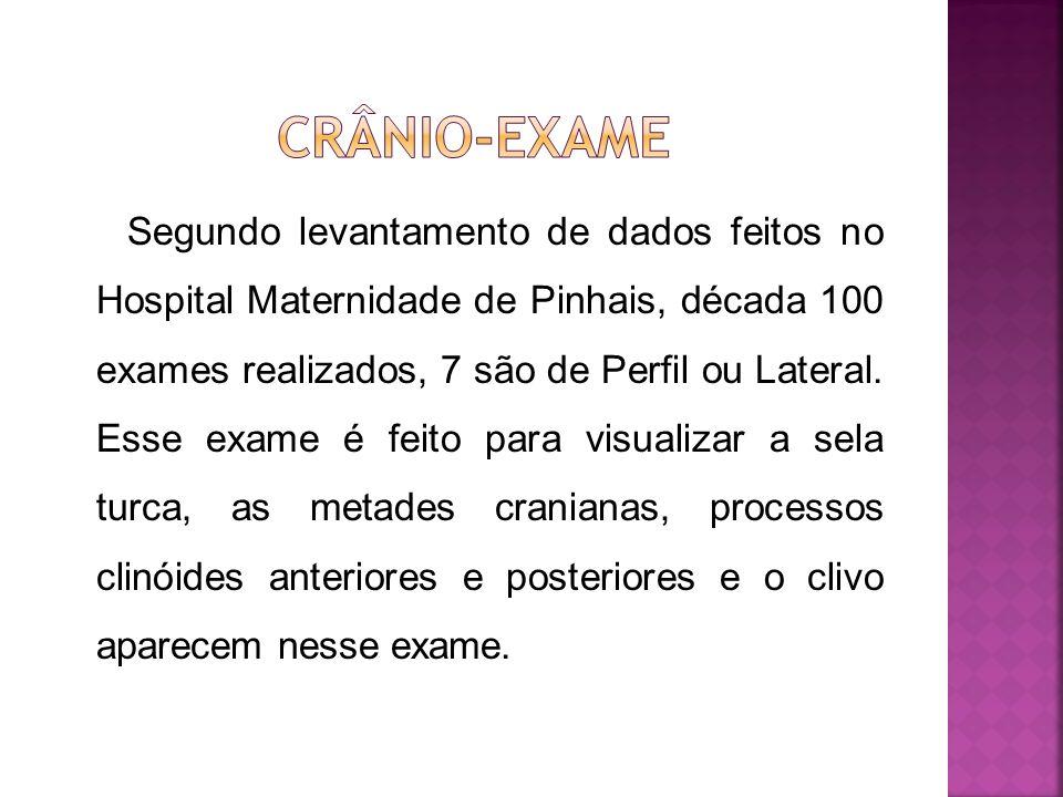 Segundo levantamento de dados feitos no Hospital Maternidade de Pinhais, década 100 exames realizados, 7 são de Perfil ou Lateral. Esse exame é feito
