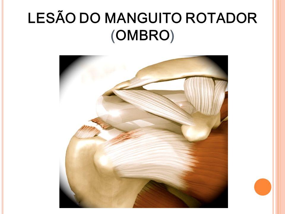 LESÃO DO MANGUITO ROTADOR (OMBRO)