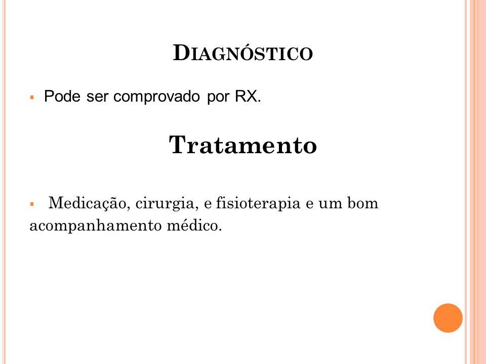 D IAGNÓSTICO Pode ser comprovado por RX. Tratamento Medicação, cirurgia, e fisioterapia e um bom acompanhamento médico.