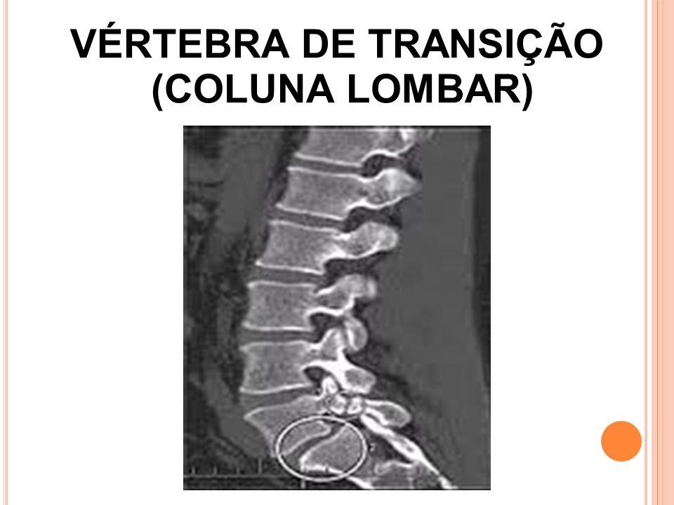 A NATOMIA É composta por 5 vértebras em alguns casos encontramos uma 6ª vértebra chamada vértebra de transição.