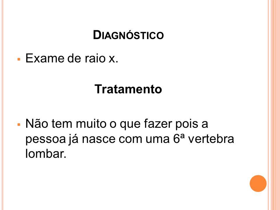 D IAGNÓSTICO Exame de raio x. Tratamento Não tem muito o que fazer pois a pessoa já nasce com uma 6ª vertebra lombar.