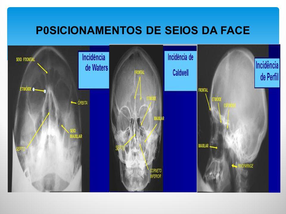 P0SICIONAMENTOS DE SEIOS DA FACE