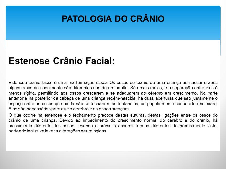 Estenose Crânio Facial: Estenose crânio facial é uma má formação óssea Os ossos do crânio de uma criança ao nascer e após alguns anos do nascimento são diferentes dos de um adulto.