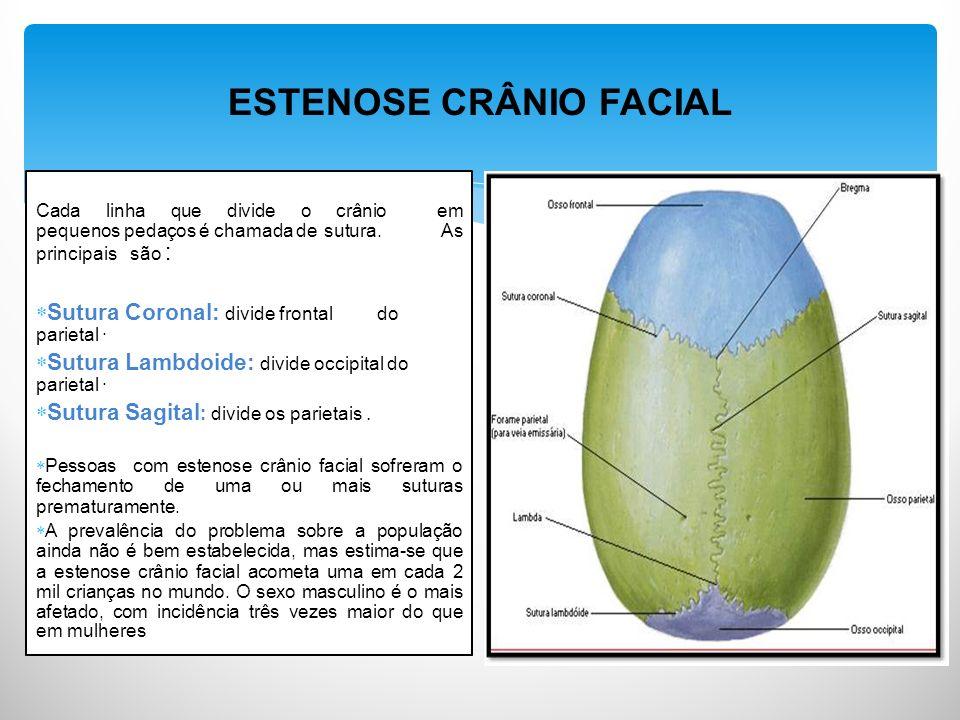 ESTENOSE CRÂNIO FACIAL Cada linha que divide o crânio em pequenos pedaços é chamada de sutura.