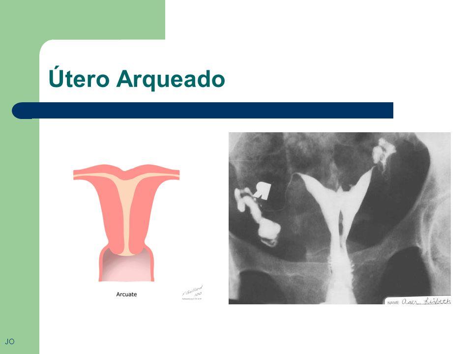 Categoria 6 Útero Arqueado: Não há documentação confiável de problemas associados ao útero arqueado, somente uma possível dificuldade para realizar uma inseminação artificial.