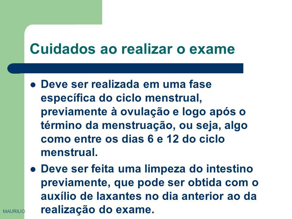 Introdução do Catéter pelo colo uterino MAURILIO