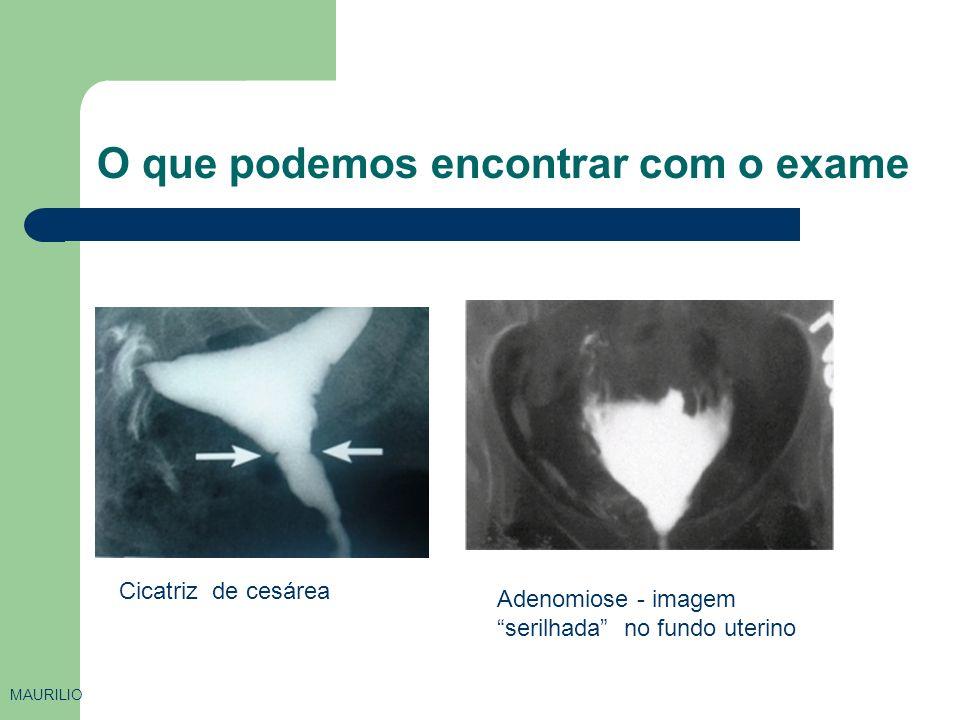 O que podemos encontrar com o exame MAURILIO Cicatriz de cesárea Adenomiose - imagem serilhada no fundo uterino