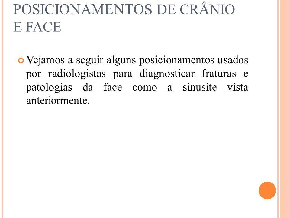 POSICIONAMENTOS DE CRÂNIO E FACE Vejamos a seguir alguns posicionamentos usados por radiologistas para diagnosticar fraturas e patologias da face como
