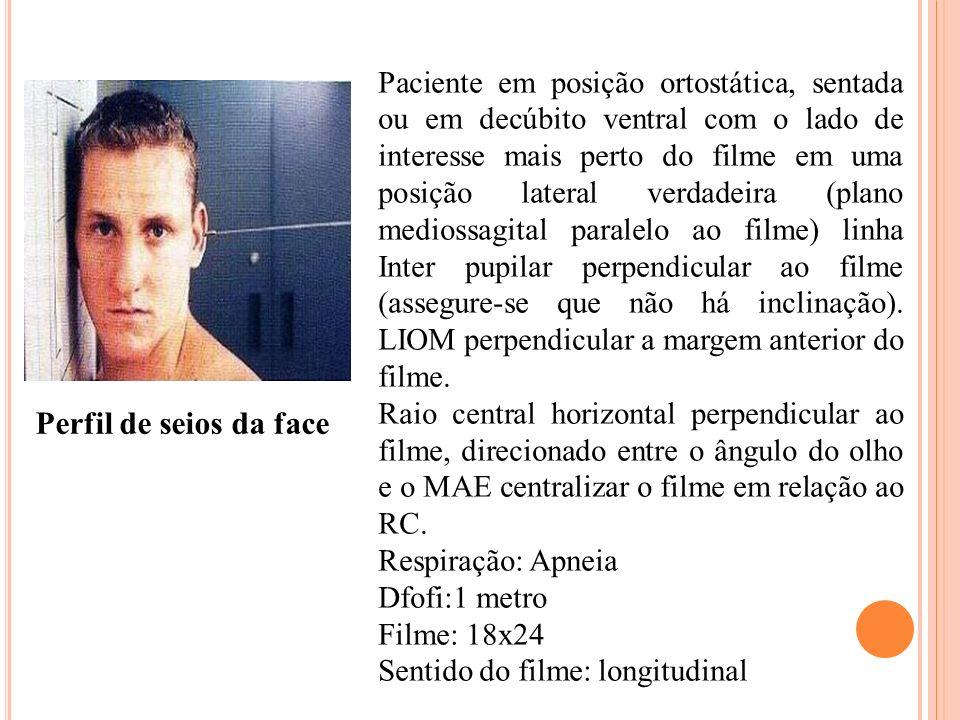 Paciente em posição ortostática, sentada ou em decúbito ventral com o lado de interesse mais perto do filme em uma posição lateral verdadeira (plano m