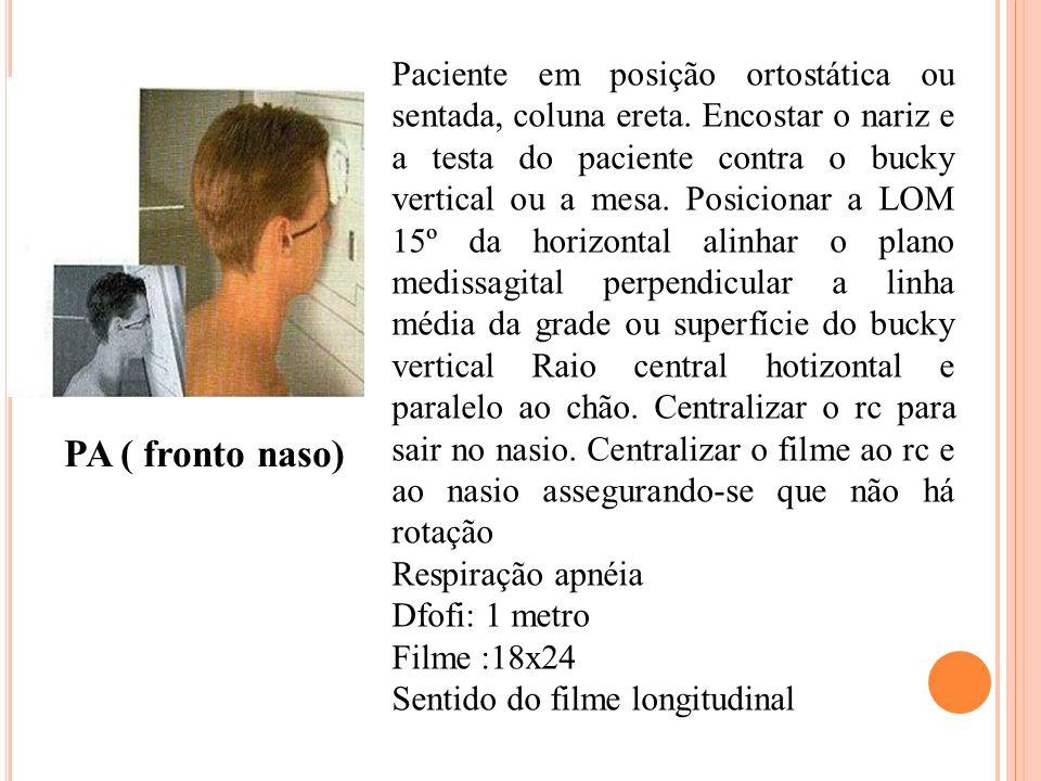 PA ( fronto naso) Paciente em posição ortostática ou sentada, coluna ereta. Encostar o nariz e a testa do paciente contra o bucky vertical ou a mesa.