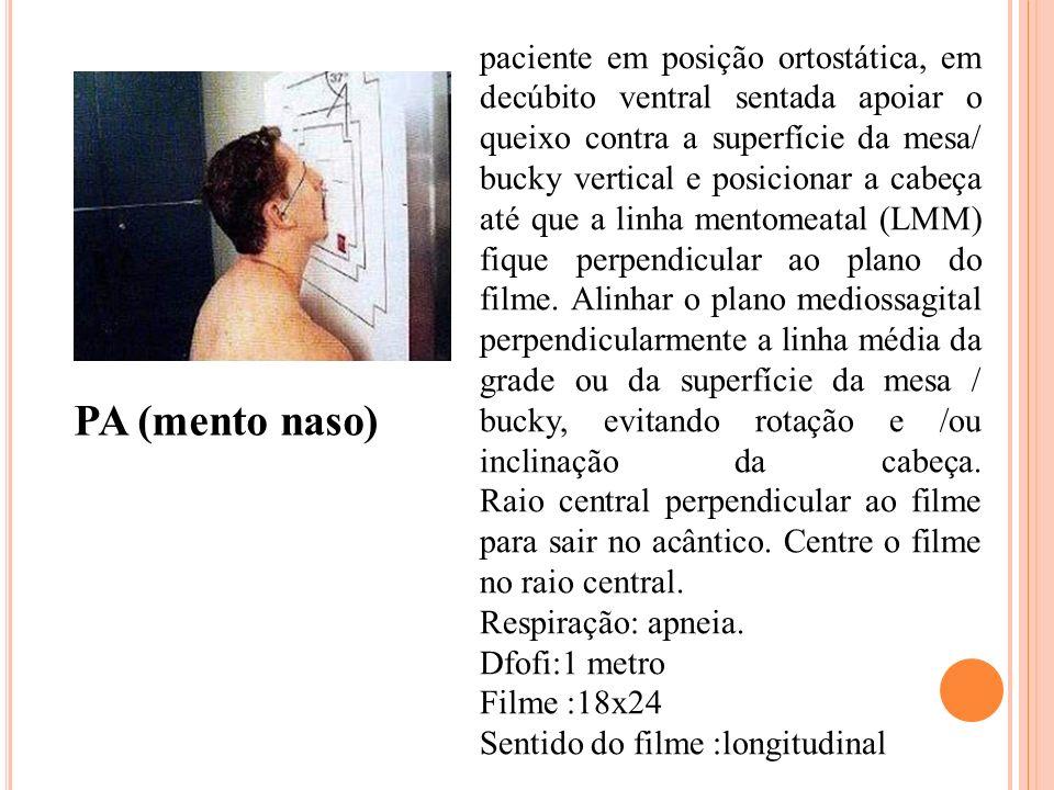 PA (mento naso) paciente em posição ortostática, em decúbito ventral sentada apoiar o queixo contra a superfície da mesa/ bucky vertical e posicionar