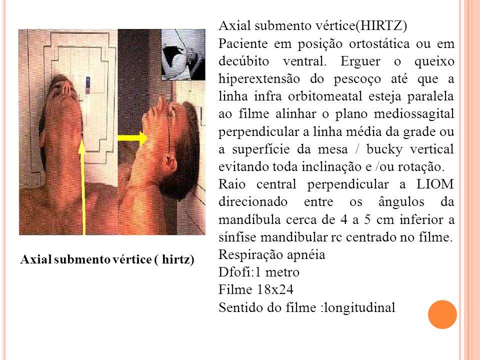 Axial submento vértice(HIRTZ) Paciente em posição ortostática ou em decúbito ventral. Erguer o queixo hiperextensão do pescoço até que a linha infra o