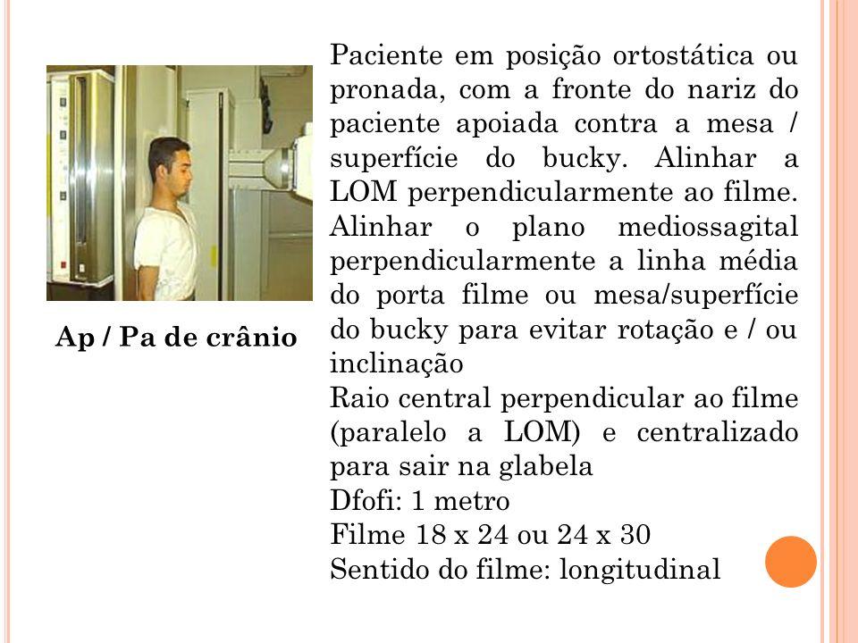Ap / Pa de crânio Paciente em posição ortostática ou pronada, com a fronte do nariz do paciente apoiada contra a mesa / superfície do bucky. Alinhar a