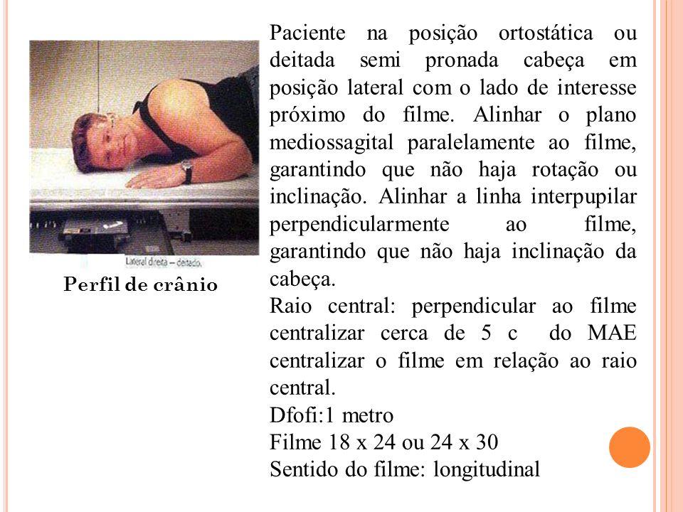 Perfil de crânio Paciente na posição ortostática ou deitada semi pronada cabeça em posição lateral com o lado de interesse próximo do filme. Alinhar o