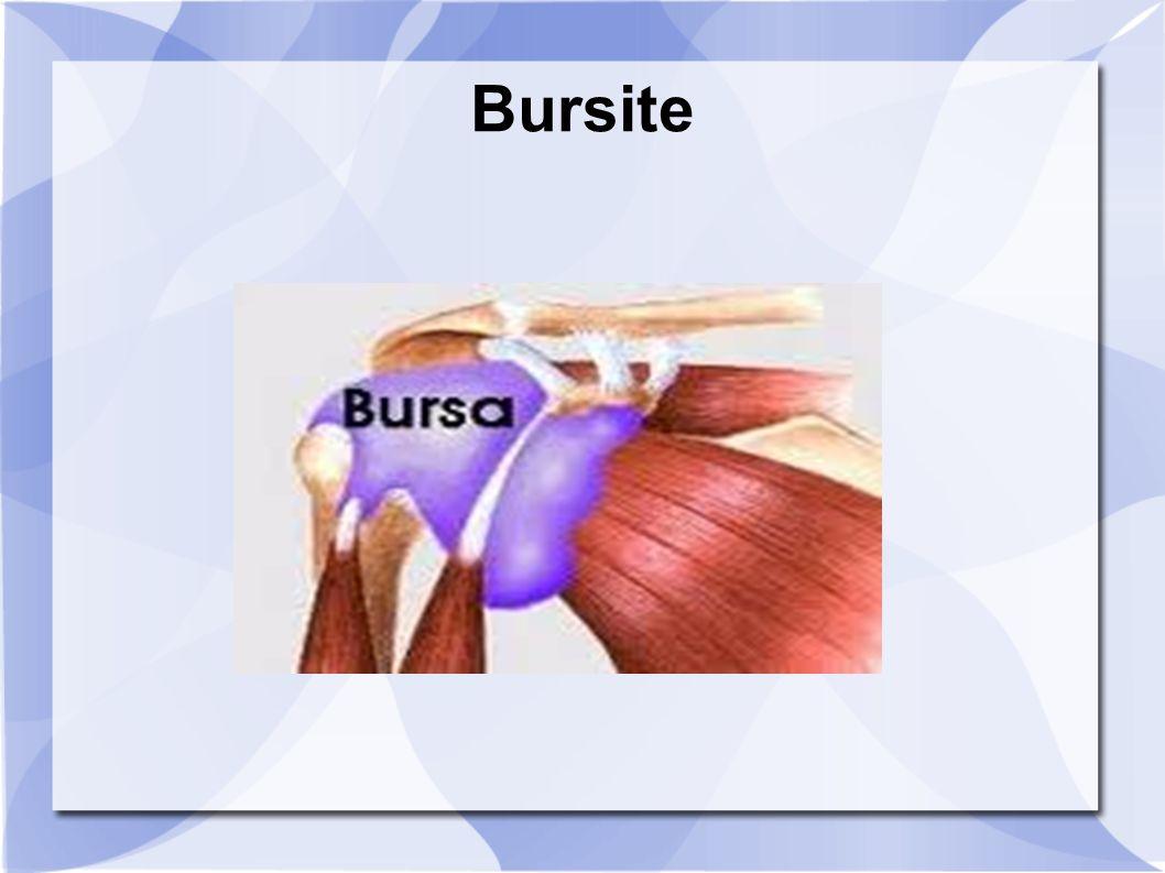 Bursite e inflamação da bursa, pequena bolsa contendo liquido que envolve as articulações e funciona como amortecedor entre ossos, tendões e tecidos musculares.
