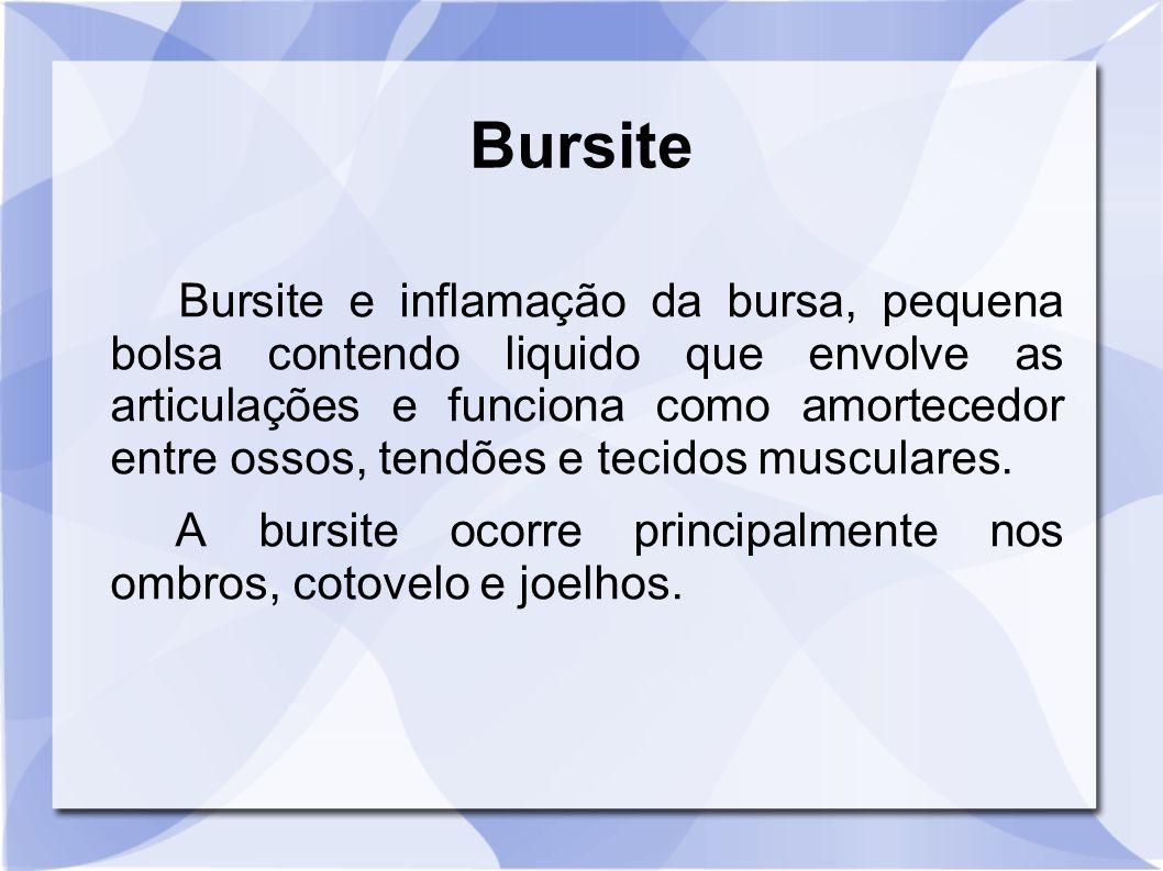 Bursite e inflamação da bursa, pequena bolsa contendo liquido que envolve as articulações e funciona como amortecedor entre ossos, tendões e tecidos m